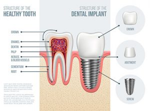 Structure of Healthy Tooth and Dental Implant