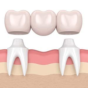 computer image of teeth bridges