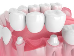 computer image of dental bridge